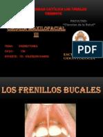 Cirugia de Frenectomias