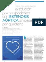 TAVI, una solución para los pacientes con Estenosis Aórtica sin pasar por quirófano | Revista GHQ #15