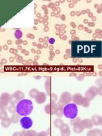 AcuteLymphoblasticLeukemia.pdf