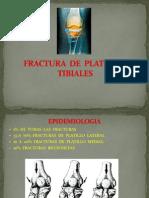 Fx de Platillos Tibiales