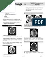 4.Neurology II Hemorrhagic Stroke 2014A
