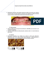 Dentinogenezis Imperfecta Tip 2