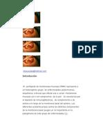 Gingivitis Descamativa