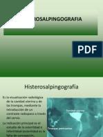 HISTEROSALPINGOGRAFIA-HISTEROSONOGRAFIA