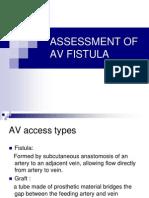 Assessment of Av Fistula