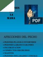 Afecciones de La Mama Extraccion Manual