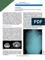 Linfangioma quístico mesentérico - Reporte de caso