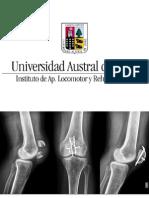 1. Fracturas y osteosíntesis 3.11