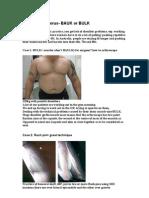 Shoulder Humerus- BAULK or BULK