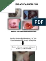 Mastitis Aguda Puerperal