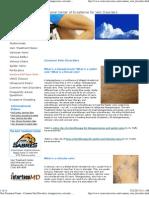 Vein Treatment Center - Common Vein Disorders, Telangiectasia, Reticular Vein, Varicose Vein, Corona Phlebectatica, Edema, Hyperpigmentation, Stasis Dermatitis, Lipodermatosclerosis, Atrophie Blanche, Venous Stasis Ulcer