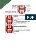 La artrosis es la enfermedad crónica articular más frecuente