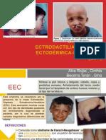 Síndrome de Ectrodactilia-Displasia Ectodérmica-Hendidura (EDH)NUEVO