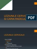 Caria Radiculara - Si Lleziunile Cervicale