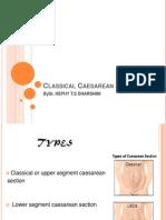 classical Caesarean Section Types