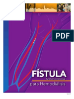 Fistula Spanish