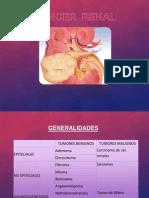 cáncer renal y tumor de wilms