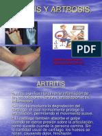 artritisyartrosis1-1228089065672583-8