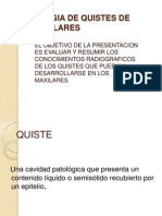 Radiologia de Quistes de Los Maxilares