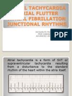 Atrial Tachycardiia