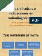 El tórax.pptx