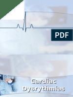 Cardiac Dysrythmias