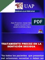 Tratamiento Precoz en La Denticion Decidua