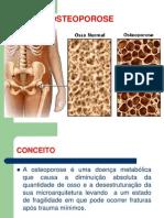 58576664 Osteoporose Trabalho Slide