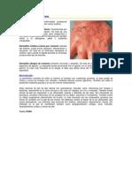 Salud Ocupacional Dermatosis
