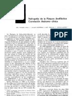 anafilactica