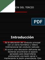 obturaciontercioapical2-090923123212-phpapp02
