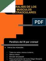 Paralisis de Musculos Extraoculares