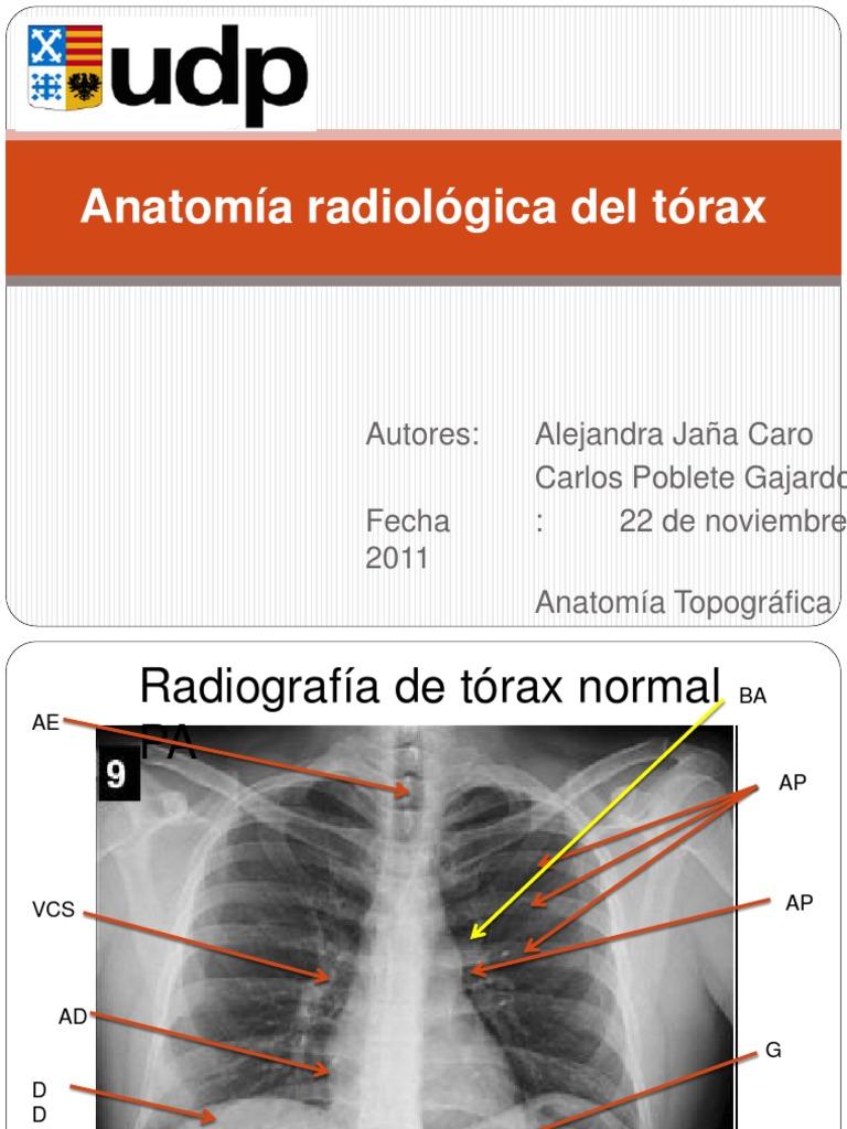 Anatomía radiológica de tórax1