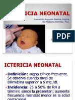 ICTERICIALEO