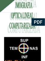 GLAUCOMA 03 Examenes Especiales