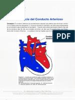 Persistencia Del Conducto Arterioso 20101014