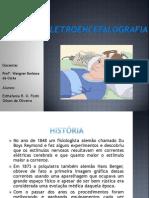 eletroecefalografia