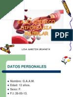 Caso Clinico Maritza Hipoplasia Medular