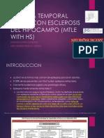 Esclerosis Mesial Temporal (Emt)