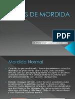 136864840 Tipos de Mordida