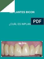 Implantes Bicon Cual Es
