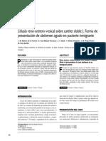 Litiasis reno-uretero-vesical sobre catéter doble J. Forma de presentación de abdomen agudo en paciente inmigrante
