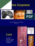 Trochlear_dysplasia_dubrana.pdf