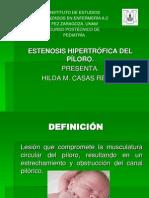 ESTENOSIS HIPERTROFICA DEL PÍLORO.