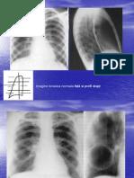 LP radiologie