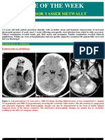6M Case Report Postinfectious Cerebellitis