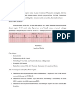 Irama Junctional Fix