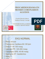 Electrocardiograma en Sindromes Coronarios Agudos