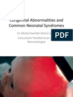 Common Neonatal Dysmorphic:Syndromes