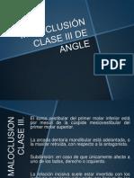 Maloclusión clase III - REY.pptx